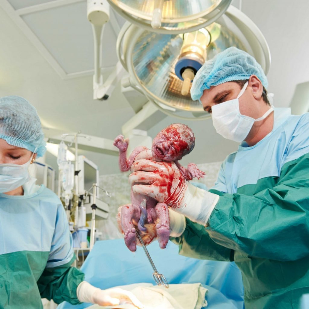 Caesarean delivery